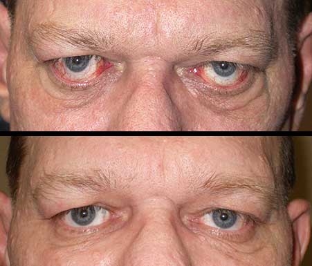 Thyroid Related Eye Problems Graves Disease