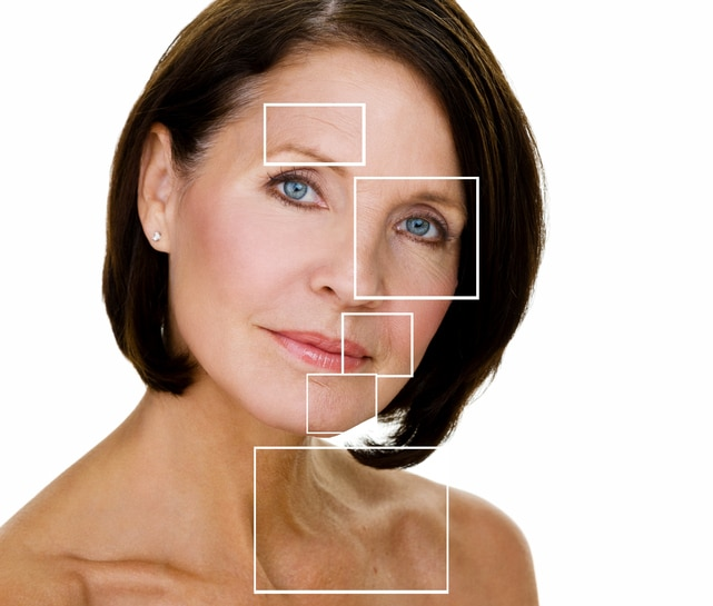Boulder facial laser rejuvenation