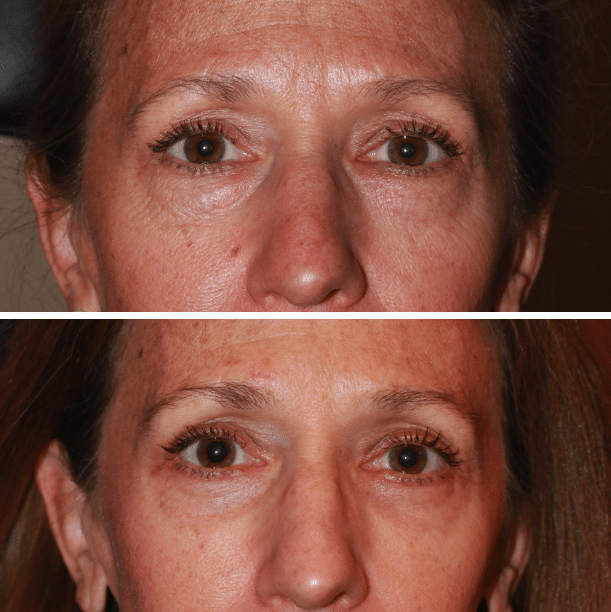 Lower Blepharoplasty Laser Resurfacing Denver, CO